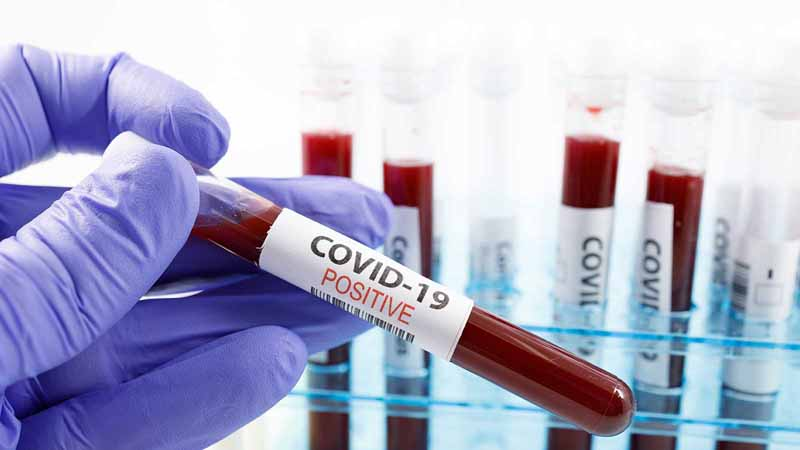 """Blood vials marked """"COVID-19 Positive."""""""