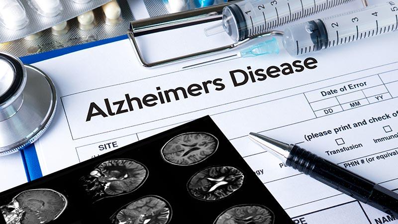Alzheimer's disease concept.