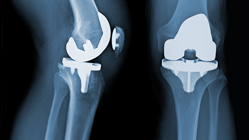 Knee replacement X-ray.