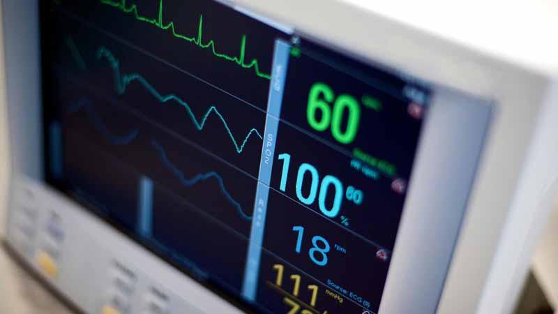 Closeup of an EKG monitor.