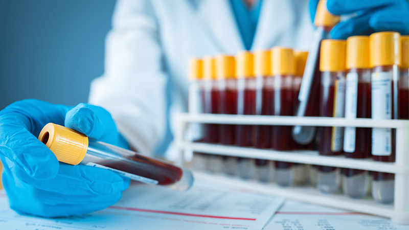 A doctor looking at blood samples.